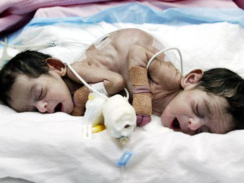 Six-month-old conjoined twin sisters separated in Haiti
