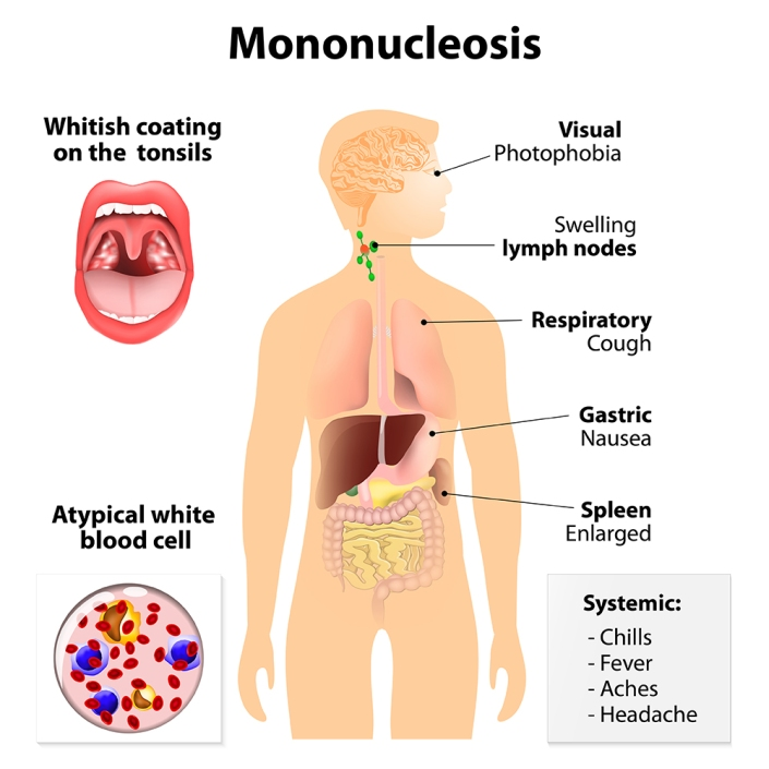 mononucleosis. Signs and symptoms of infectious mononucleosis. Human silhouette with internal organs. glandular fever, Pfeiffer's disease or Filatov's disease